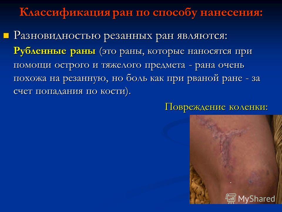 Классификация ран по способу нанесения: Разновидностью резанных ран являются: Рубленные раны (это раны, которые наносятся при помощи острого и тяжелого предмета - рана очень похожа на резанную, но боль как при рваной ране - за счет попадания по кости
