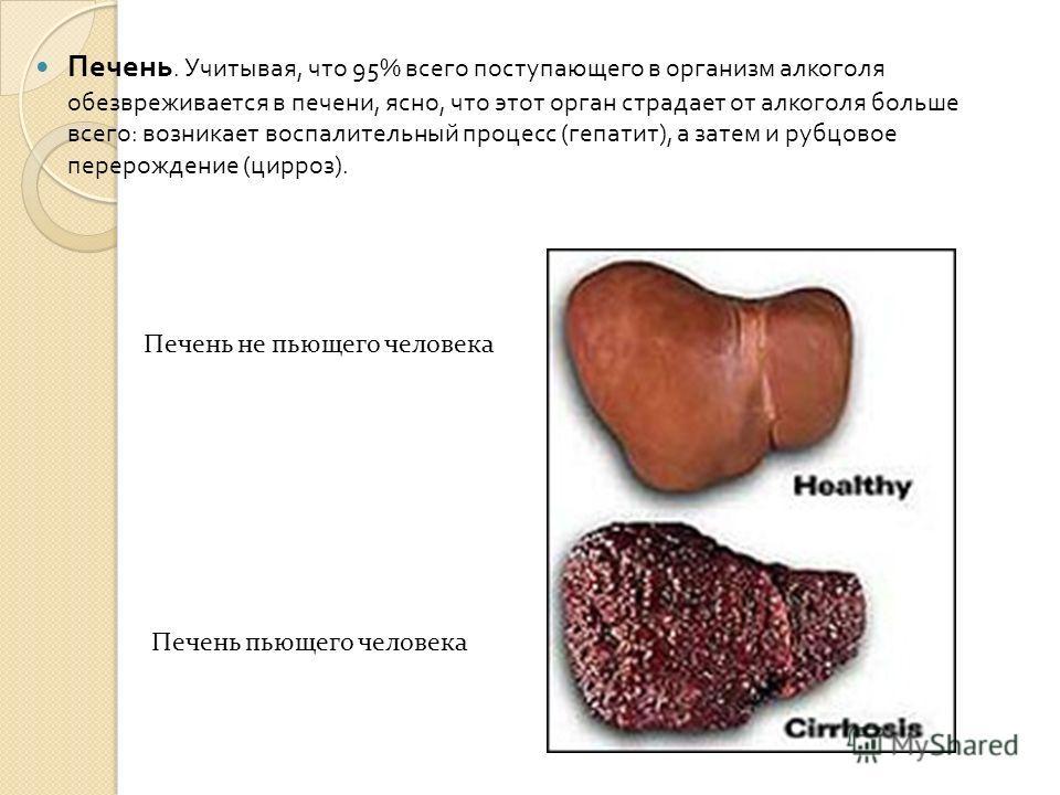 Печень. Учитывая, что 95% всего поступающего в организм алкоголя обезвреживается в печени, ясно, что этот орган страдает от алкоголя больше всего : возникает воспалительный процесс ( гепатит ), а затем и рубцовое перерождение ( цирроз ). Печень не пь