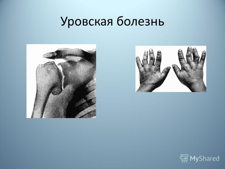 Уровская болезнь
