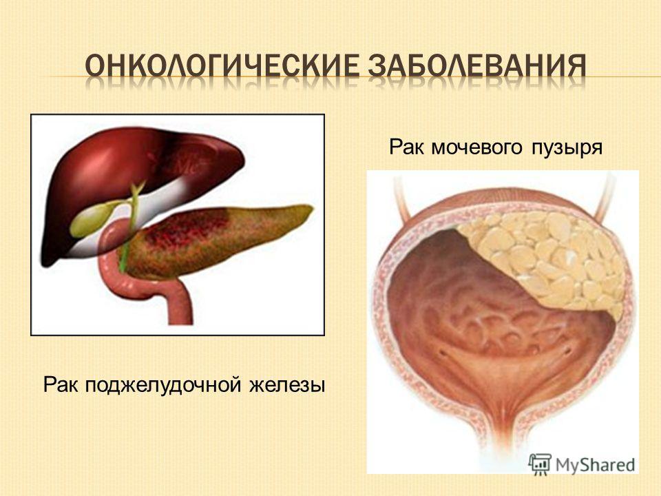 Рак мочевого пузыря Рак поджелудочной железы