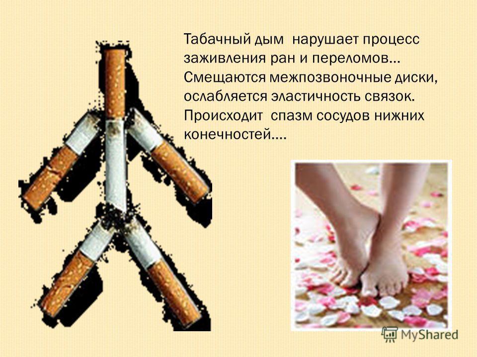 Табачный дым нарушает процесс заживления ран и переломов… Смещаются межпозвоночные диски, ослабляется эластичность связок. Происходит спазм сосудов нижних конечностей….