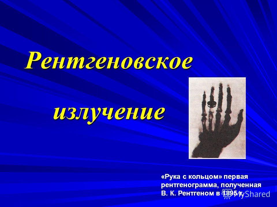 Рентгеновское излучение «Рука с кольцом» первая рентгенограмма, полученная В. К. Рентгеном в 1895 г.