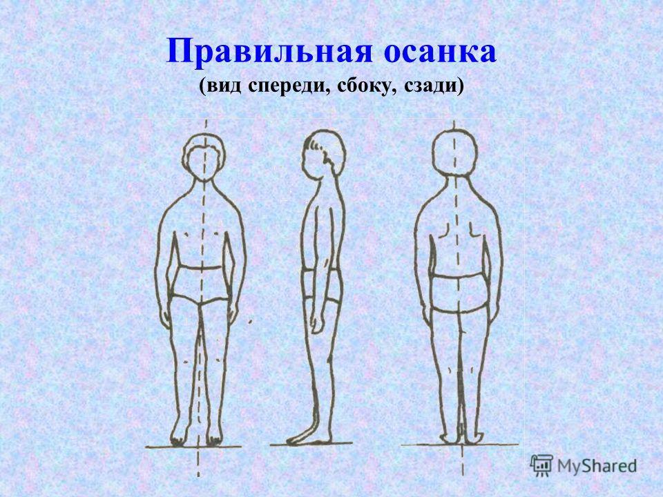 Правильная осанка (вид спереди, сбоку, сзади)