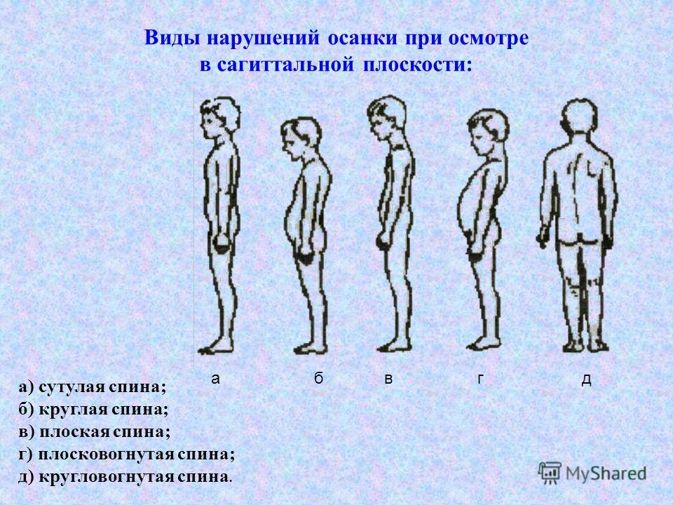 а) сутулая спина; б) круглая спина; в) плоская спина; г) плосковогнутая спина; д) кругловогнутая спина. Виды нарушений осанки при осмотре в сагиттальной плоскости: а б в г д