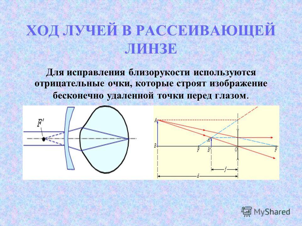ХОД ЛУЧЕЙ В РАССЕИВАЮЩЕЙ ЛИНЗЕ Для исправления близорукости используются отрицательные очки, которые строят изображение бесконечно удаленной точки перед глазом.