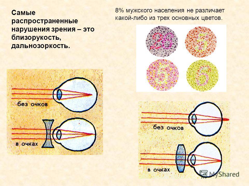 Фото очков для зрения с большой оправой