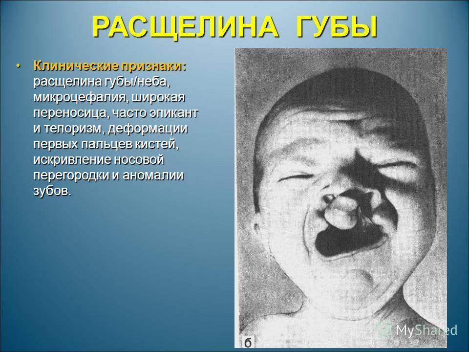 РАСЩЕЛИНА ГУБЫ Клинические признаки: расщелина губы/неба, микроцефалия, широкая переносица, часто эпикант и телоризм, деформации первых пальцев кистей, искривление носовой перегородки и аномалии зубов.Клинические признаки: расщелина губы/неба, микроц