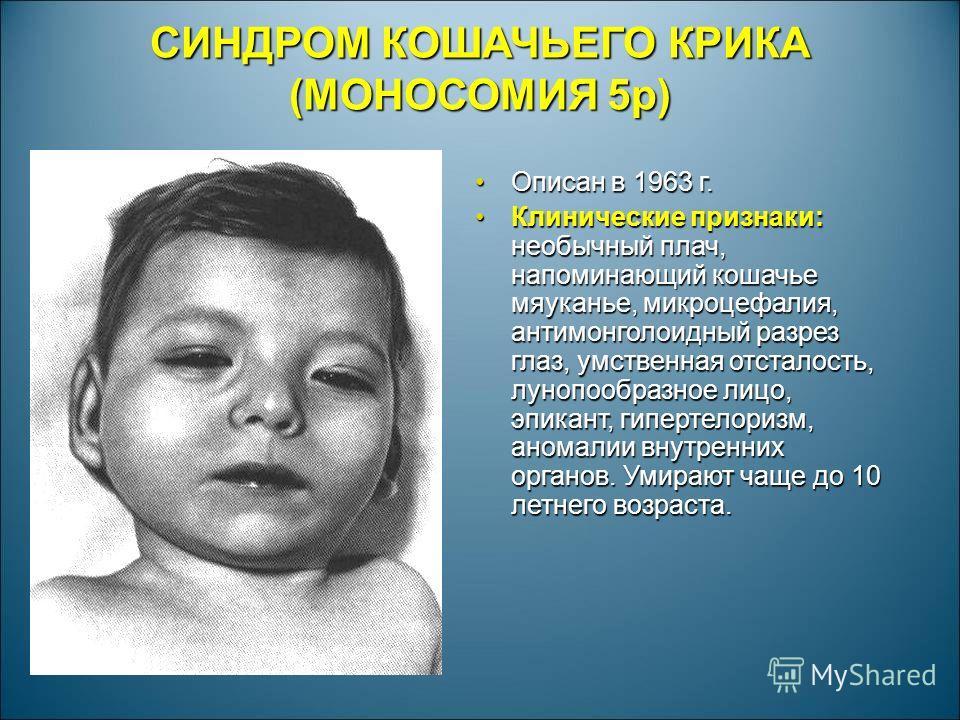 СИНДРОМ КОШАЧЬЕГО КРИКА (МОНОСОМИЯ 5р) Описан в 1963 г.Описан в 1963 г. Клинические признаки: необычный плач, напоминающий кошачье мяуканье, микроцефалия, антимонголоидный разрез глаз, умственная отсталость, лунопообразное лицо, эпикант, гипертелориз