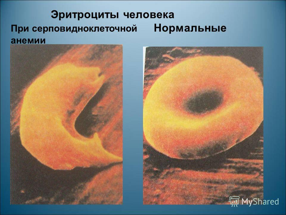 Эритроциты человека При серповидноклеточной Нормальные анемии