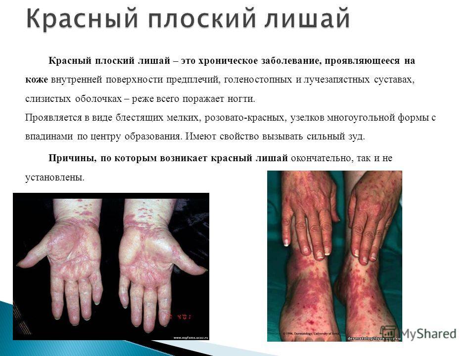 Красный плоский лишай – это хроническое заболевание, проявляющееся на коже внутренней поверхности предплечий, голеностопных и лучезапястных суставах, слизистых оболочках – реже всего поражает ногти. Проявляется в виде блестящих мелких, розовато-красн