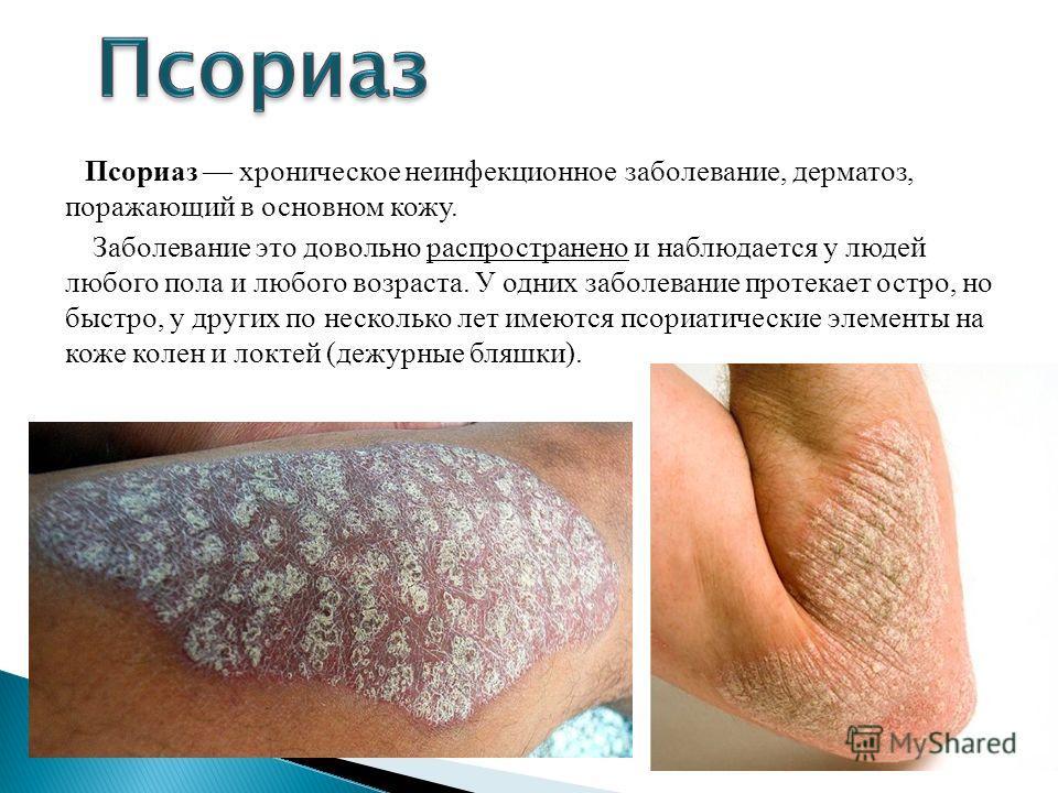 Псориаз хроническое неинфекционное заболевание, дерматоз, поражающий в основном кожу. Заболевание это довольно распространено и наблюдается у людей любого пола и любого возраста. У одних заболевание протекает остро, но быстро, у других по несколько л
