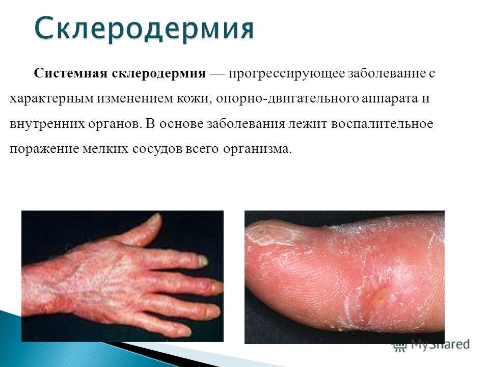 Системная склеродермия прогрессирующее заболевание с характерным изменением кожи, опорно-двигательного аппарата и внутренних органов. В основе заболевания лежит воспалительное поражение мелких сосудов всего организма.
