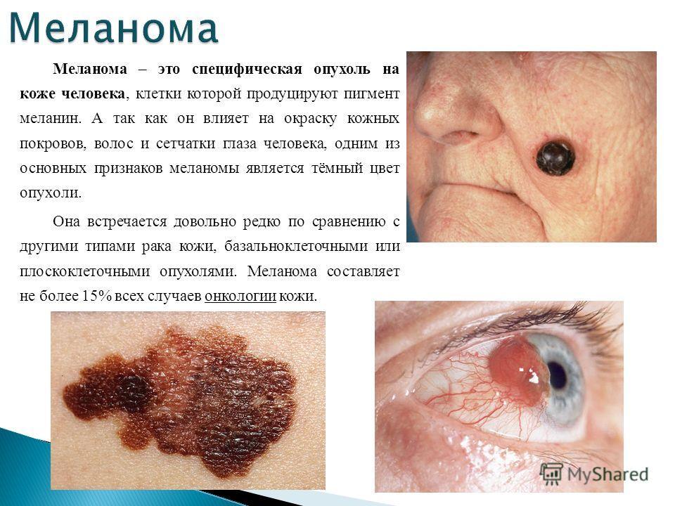 Меланома – это специфическая опухоль на коже человека, клетки которой продуцируют пигмент меланин. А так как он влияет на окраску кожных покровов, волос и сетчатки глаза человека, одним из основных признаков меланомы является тёмный цвет опухоли. Она