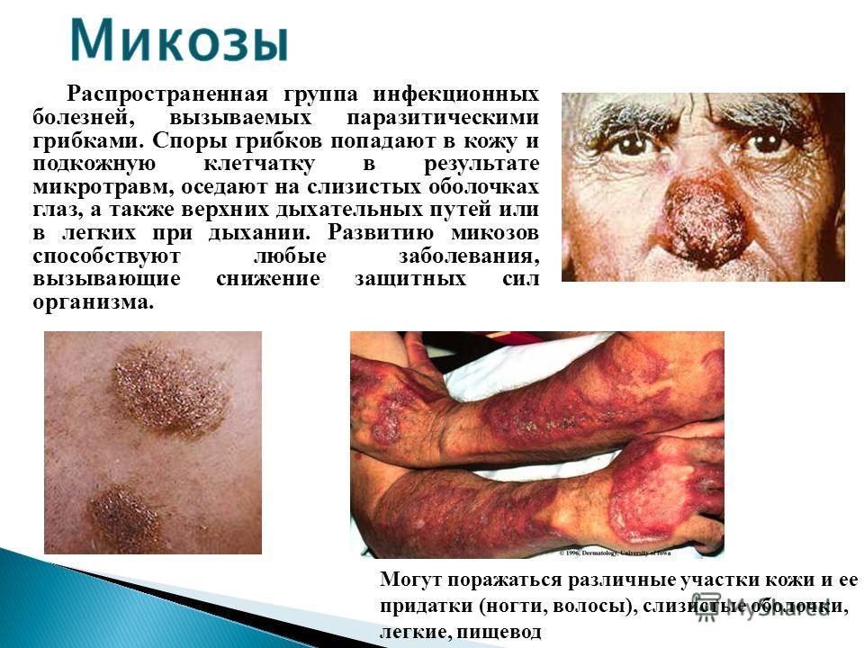 Распространенная группа инфекционных болезней, вызываемых паразитическими грибками. Споры грибков попадают в кожу и подкожную клетчатку в результате микротравм, оседают на слизистых оболочках глаз, а также верхних дыхательных путей или в легких при д