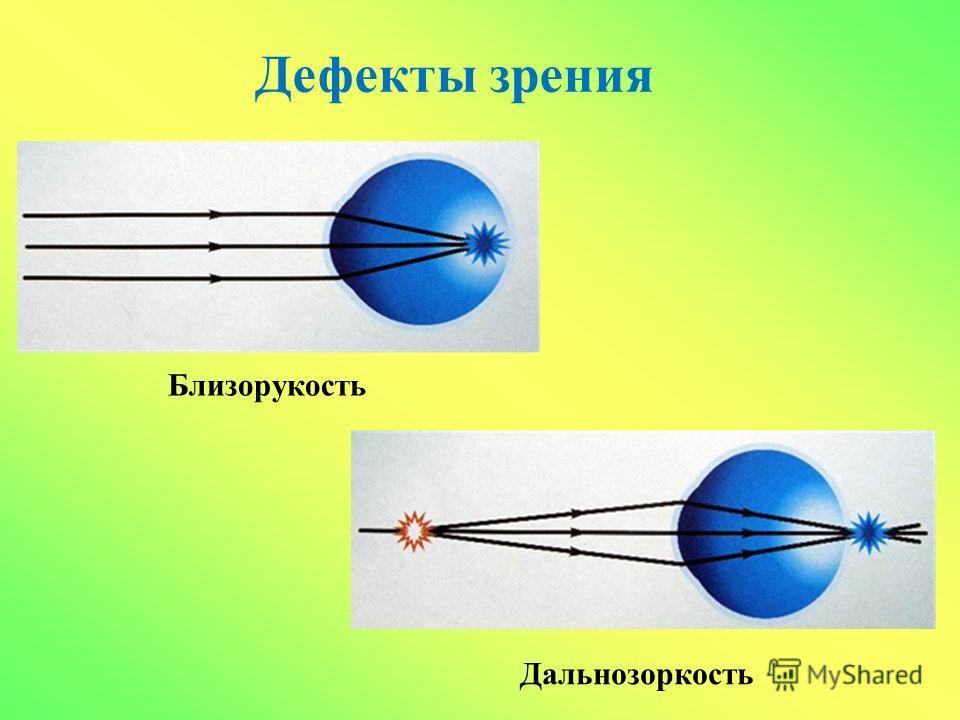 Дефекты зрения Близорукость Дальнозоркость