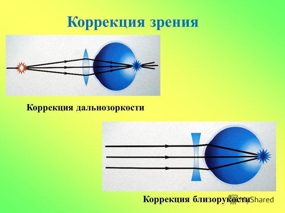Коррекция зрения Коррекция близорукости Коррекция дальнозоркости