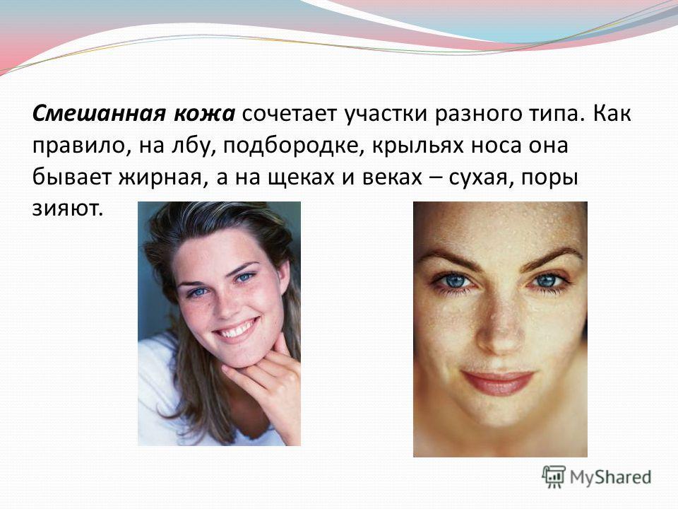 Смешанная кожа сочетает участки разного типа. Как правило, на лбу, подбородке, крыльях носа она бывает жирная, а на щеках и веках – сухая, поры зияют.