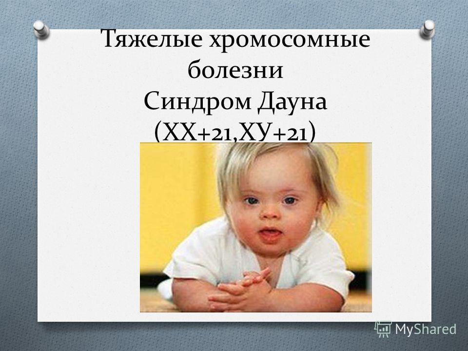 Тяжелые хромосомные болезни Синдром Дауна (ХХ+21,ХУ+21)