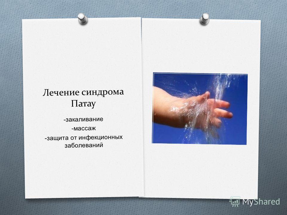 Лечение синдрома Патау - закаливание - массаж - защита от инфекционных заболеваний