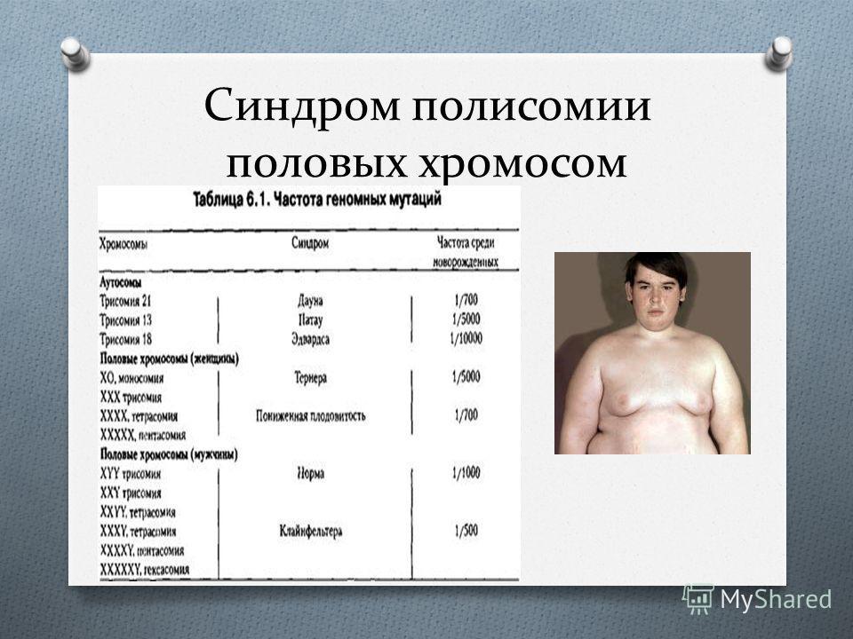 Синдром полисомии половых хромосом