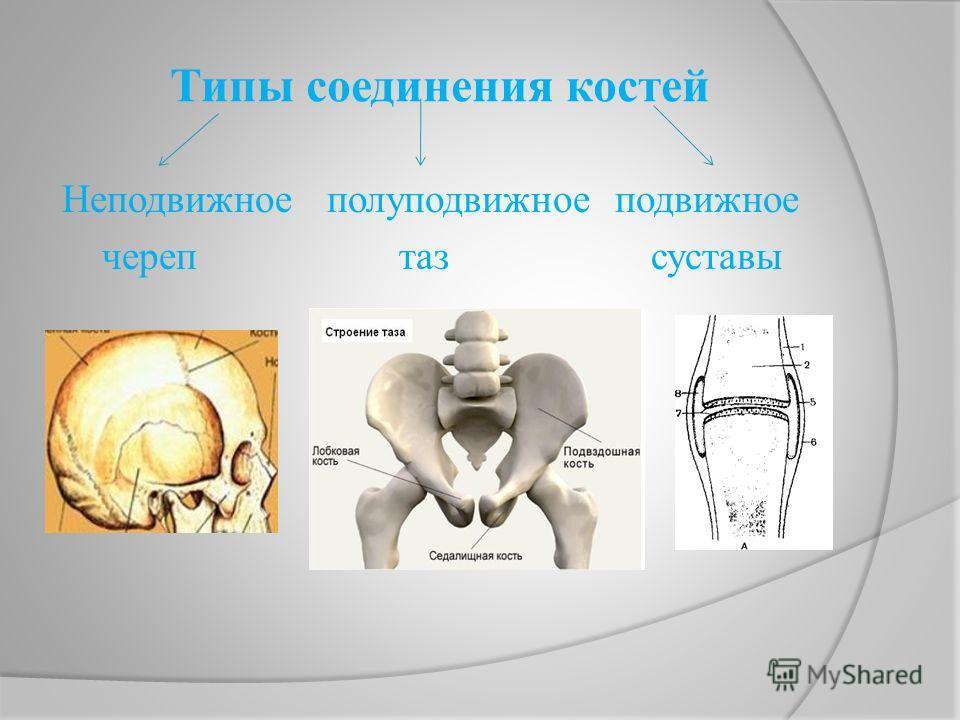 Типы соединения костей Неподвижное полуподвижное подвижное череп таз суставы