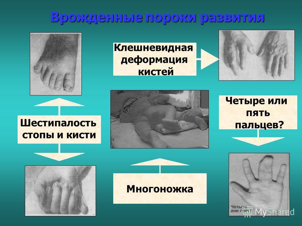 Синдром Дауна – хромосомное заболевание (лишняя 21-я хромосома) Генетические нарушения
