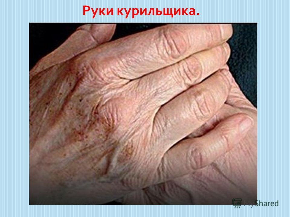 Руки курильщика.
