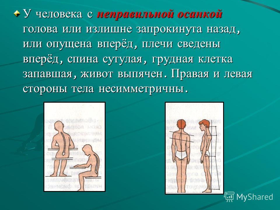 У человека с неправильной осанкой голова или излишне запрокинута назад, или опущена вперёд, плечи сведены вперёд, спина сутулая, грудная клетка запавшая, живот выпячен. Правая и левая стороны тела несимметричны.