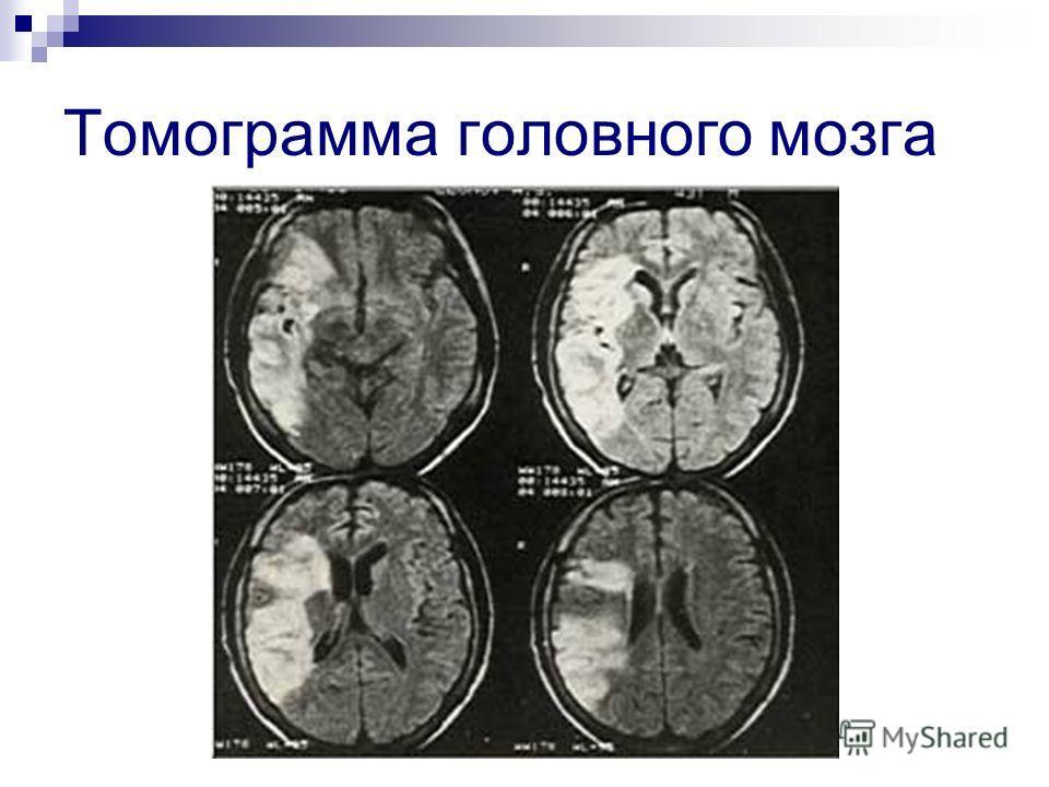 Томограмма головного мозга