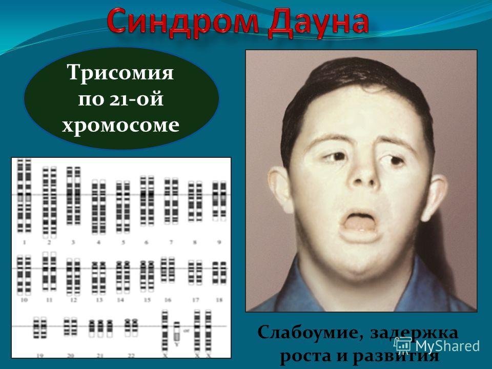 Трисомия по 21-ой хромосоме Слабоумие, задержка роста и развития