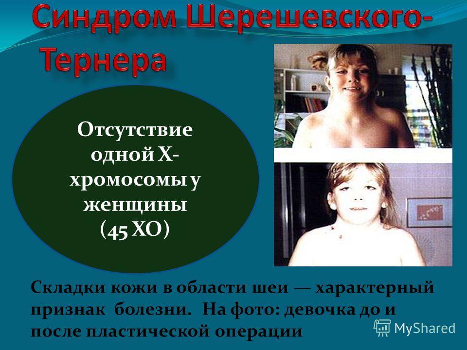 Складки кожи в области шеи характерный признак болезни. На фото: девочка до и после пластической операции Отсутствие одной Х- хромосомы у женщины (45 ХО)