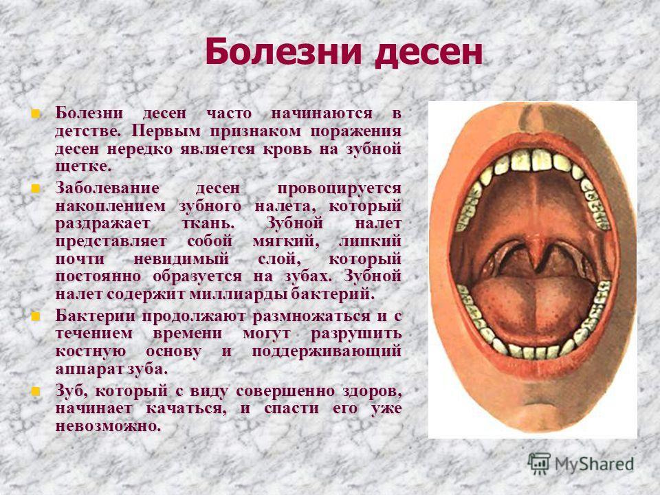 Болезни десен Болезни десен часто начинаются в детстве. Первым признаком поражения десен нередко является кровь на зубной щетке. Болезни десен часто начинаются в детстве. Первым признаком поражения десен нередко является кровь на зубной щетке. Заболе