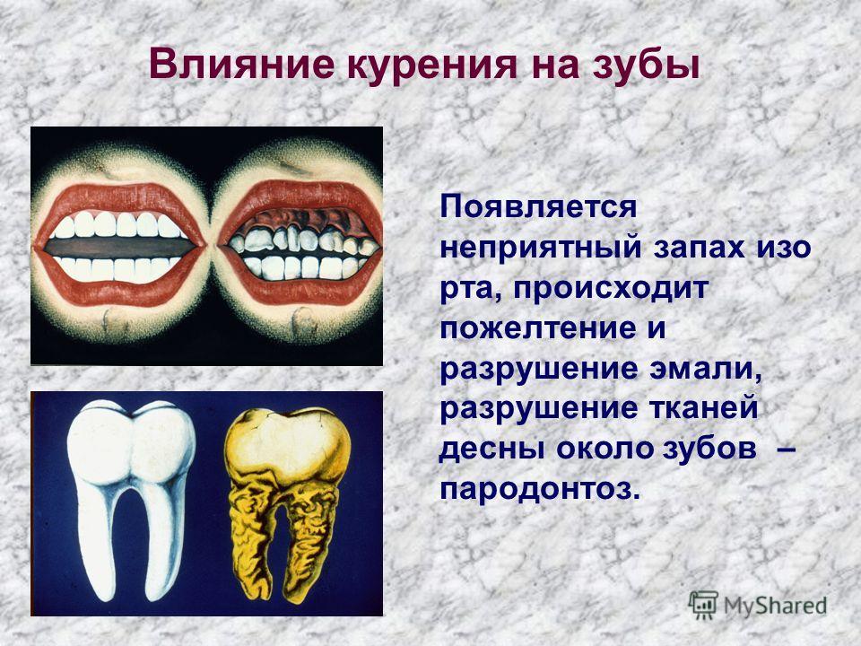 Появляется неприятный запах изо рта, происходит пожелтение и разрушение эмали, разрушение тканей десны около зубов – пародонтоз. Влияние курения на зубы