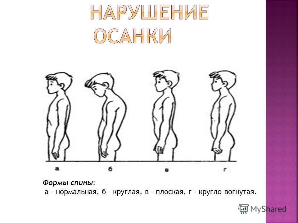 Формы спины: а - нормальная, б - круглая, в - плоская, г - кругло-вогнутая.