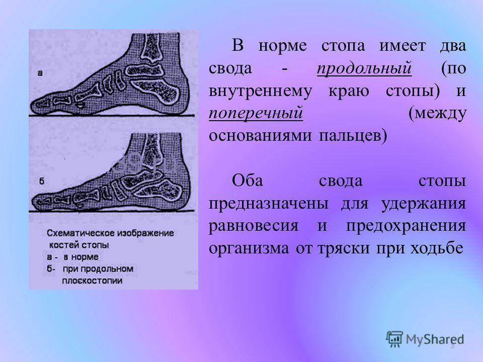 В норме стопа имеет два свода - продольный (по внутреннему краю стопы) и поперечный (между основаниями пальцев) Оба свода стопы предназначены для удержания равновесия и предохранения организма от тряски при ходьбе 3