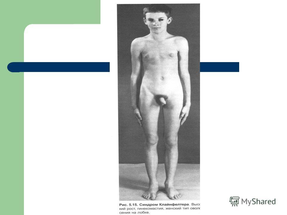 Признаки Половые Вторичные фото