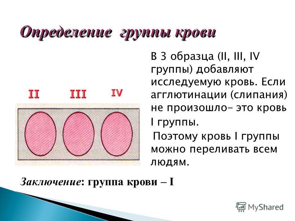 В 3 образца (II, III, IV группы) добавляют исследуемую кровь. Если агглютинации (слипания) не произошло- это кровь I группы. Поэтому кровь I группы можно переливать всем людям. Заключение: группа крови – I