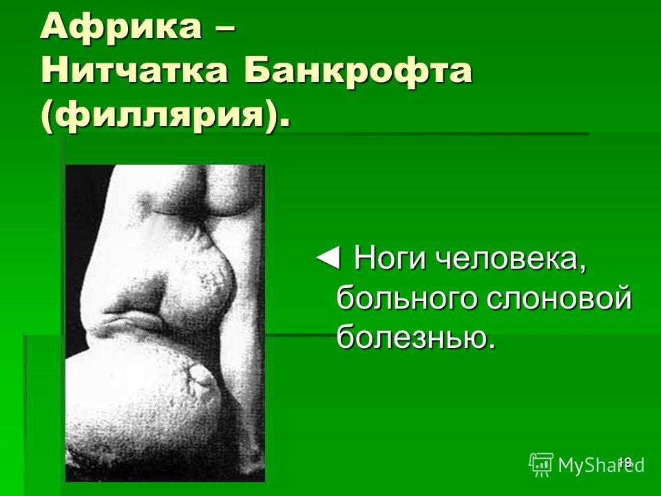 19 Африка – Нитчатка Банкрофта (филлярия). Ноги человека, больного слоновой болезнью. Ноги человека, больного слоновой болезнью.