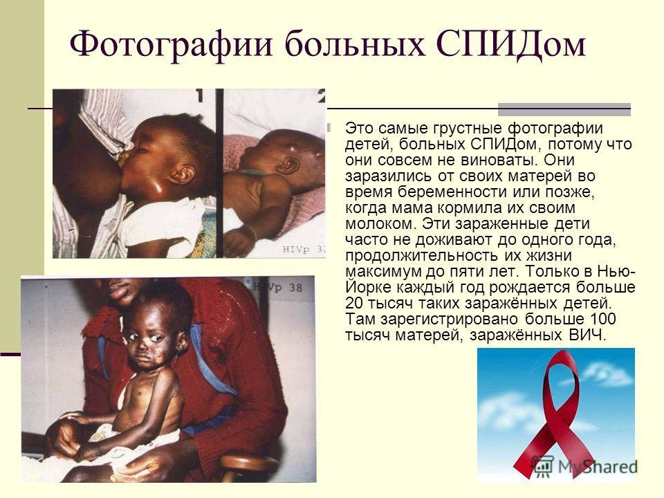 Фотографии больных СПИДом Это самые грустные фотографии детей, больных СПИДом, потому что они совсем не виноваты. Они заразились от своих матерей во время беременности или позже, когда мама кормила их своим молоком. Эти зараженные дети часто не дожив