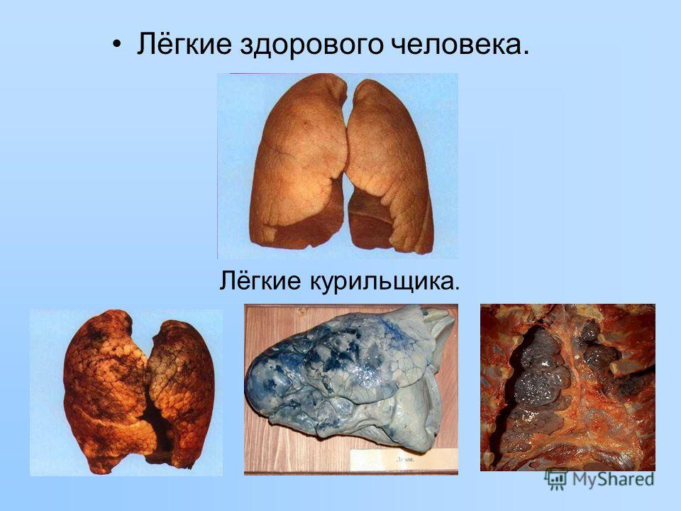 Лёгкие курильщика. Лёгкие здорового человека.