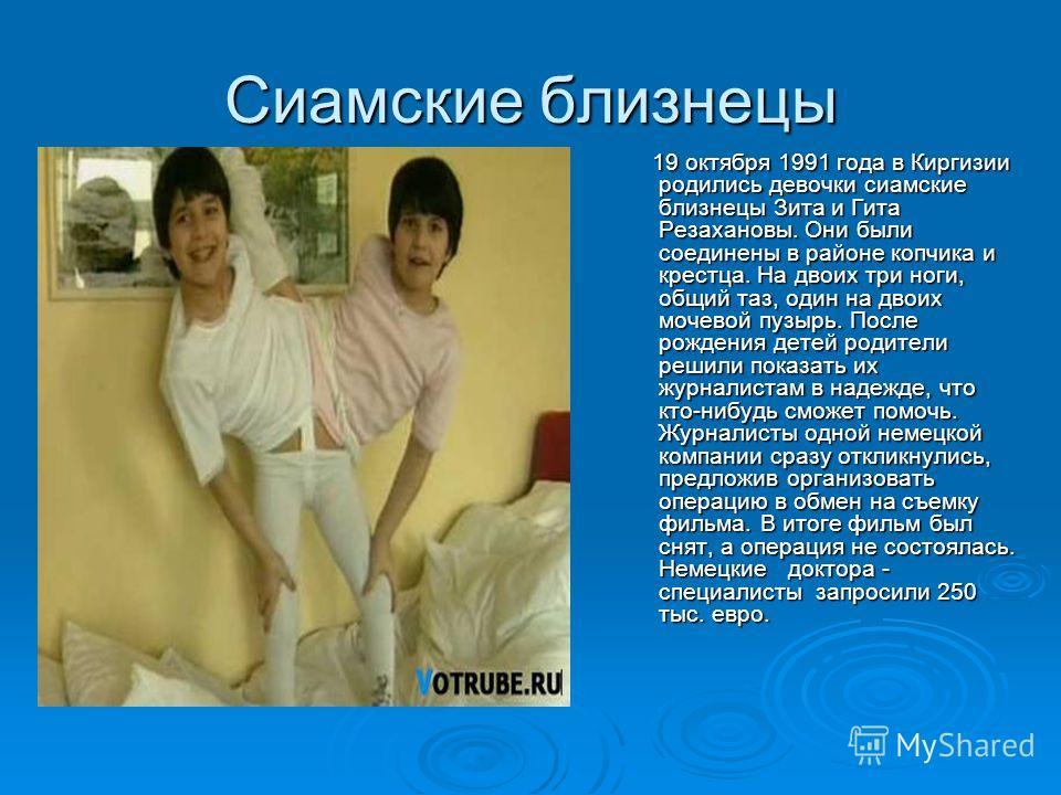 Сиамские близнецы 19 октября 1991 года в Киргизии родились девочки сиамские близнецы Зита и Гита Резахановы. Они были соединены в районе копчика и крестца. На двоих три ноги, общий таз, один на двоих мочевой пузырь. После рождения детей родители реши
