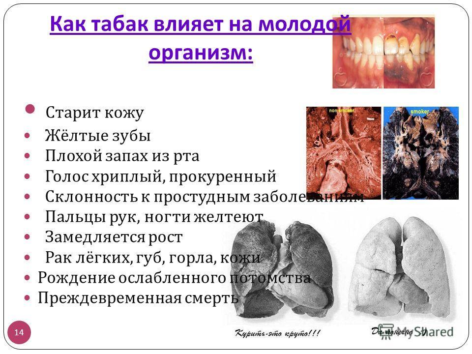 Как табак влияет на молодой организм : 14 Старит кожу Жёлтые зубы Плохой запах из рта Голос хриплый, прокуренный Склонность к простудным заболеваниям Пальцы рук, ногти желтеют Замедляется рост Рак лёгких, губ, горла, кожи Рождение ослабленного потомс