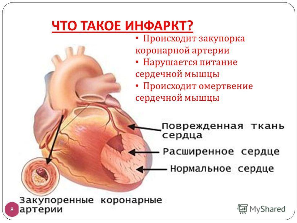 ЧТО ТАКОЕ ИНФАРКТ ? 8 Происходит закупорка коронарной артерии Нарушается питание сердечной мышцы Происходит омертвение сердечной мышцы