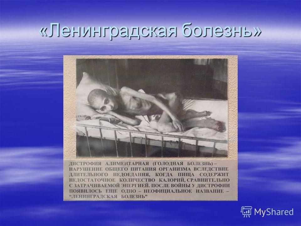 «Ленинградская болезнь»