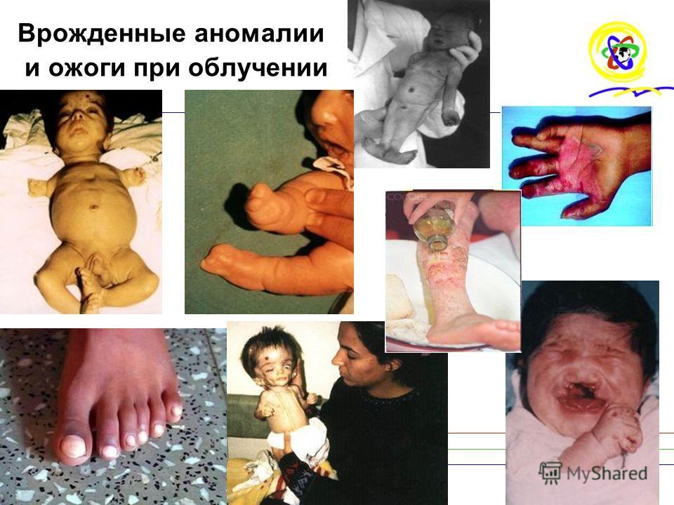 16 Врожденные аномалии и ожоги при облучении