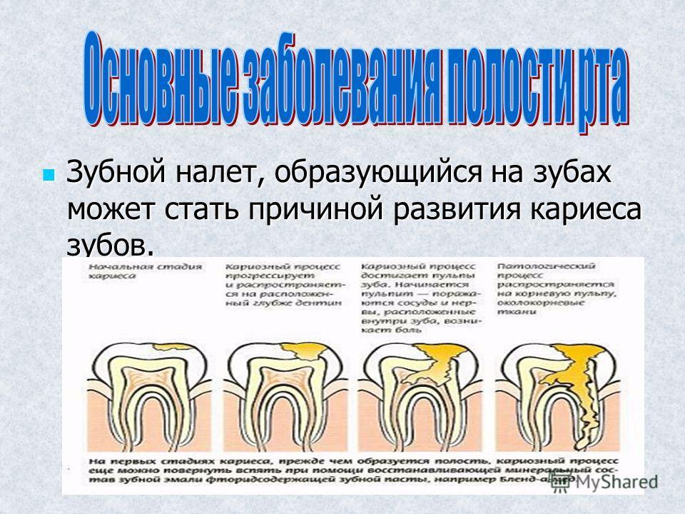 Зубной налет, образующийся на зубах может стать причиной развития кариеса зубов. Зубной налет, образующийся на зубах может стать причиной развития кариеса зубов.
