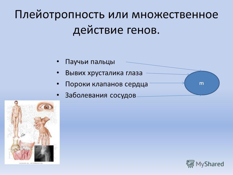 Плейотропность или множественное действие генов. Паучьи пальцы Вывих хрусталика глаза Пороки клапанов сердца Заболевания сосудов m