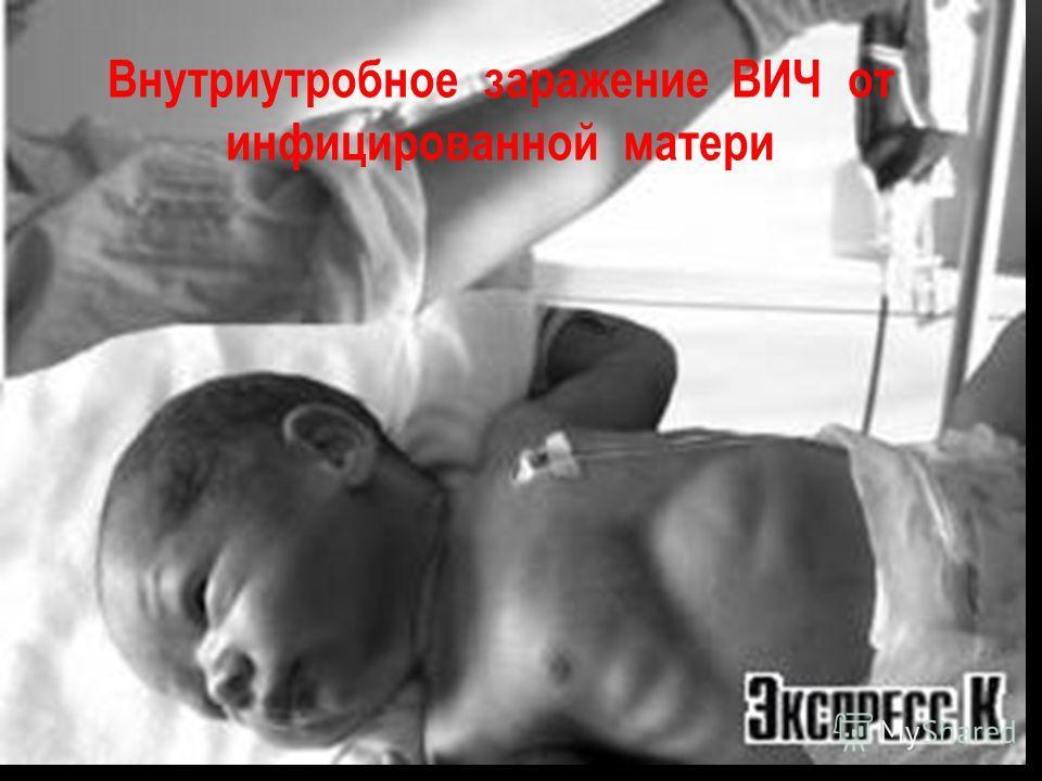 Внутриутробное заражение ВИЧ от инфицированной матери