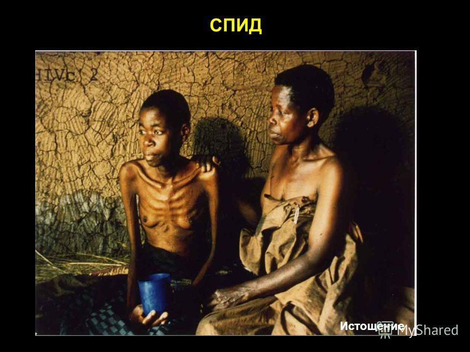 СПИД Истощение