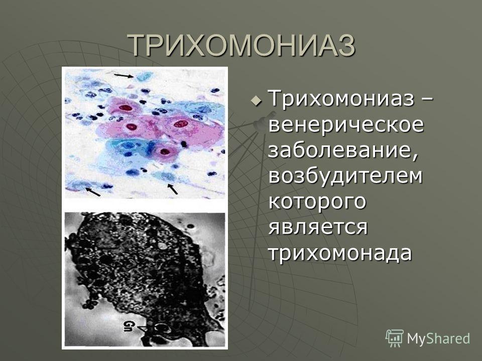 ТРИХОМОНИАЗ Трихомониаз – венерическое заболевание, возбудителем которого является трихомонада Трихомониаз – венерическое заболевание, возбудителем которого является трихомонада